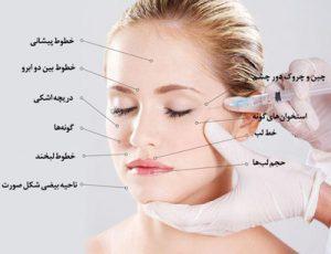 تزریق ژل در شیراز
